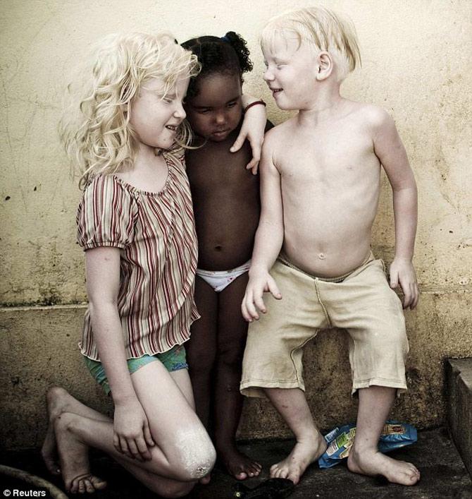 irmãos-albinos