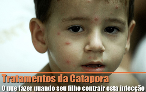 Tratamentos da Catapora