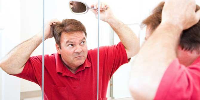 A queda de cabelos é uma preocupação de muitos homens hoje em dia