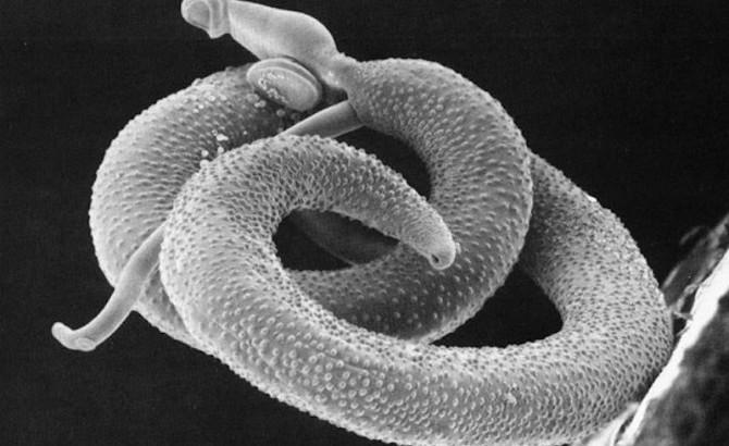 O Schistosoma Mansoni é o causador da esquistossomose mais conhecido como barriga d água.
