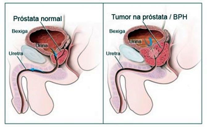 Câncer de próstata, quanto mais rápido o diagnostico, mas eficaz é o tratamento
