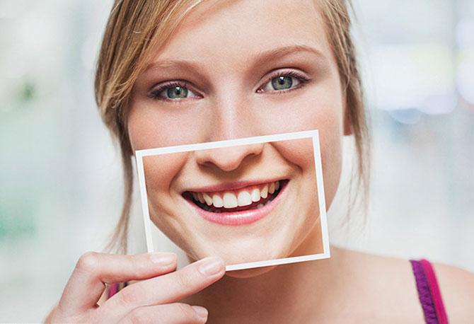 Um sorriso bonito aumenta a confiança e a auto estima da pessoa.