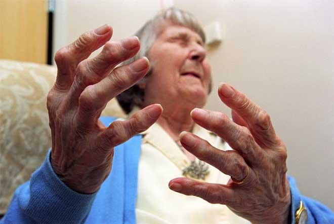 Doença tem seu pico de incidência entre 40 e 70 anos.
