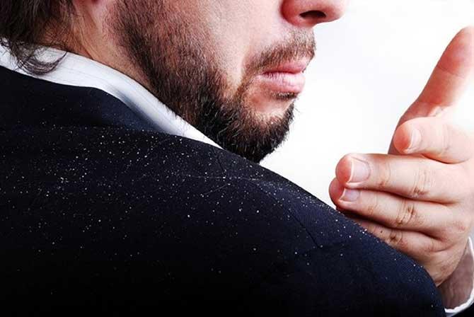 A caspa é um sintoma da dermatite seborreica.
