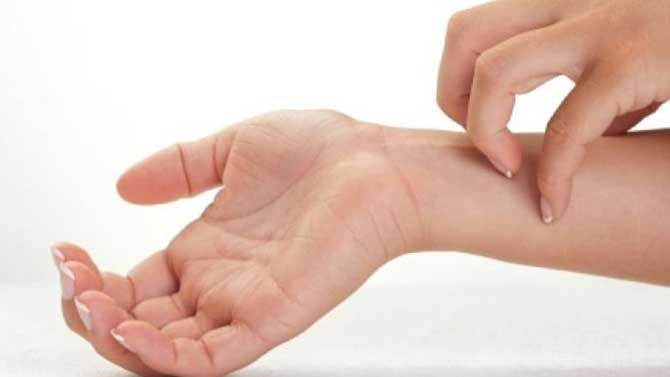 O principal sintoma da dermatite alérgica é a coceira.