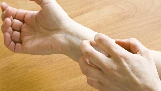 A vermelhidão e a coceira são os primeiros sintomas.