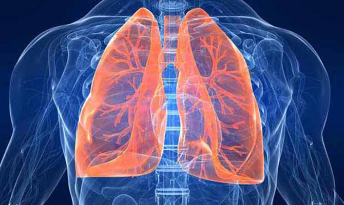 A pneumonia é uma infeccção no pulmão.