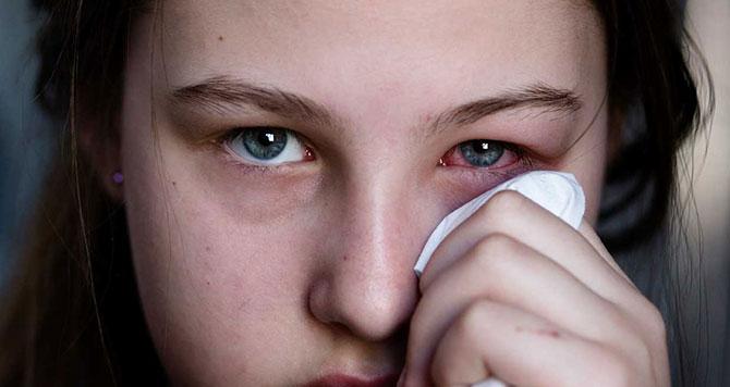O principal sintoma da conjuntivite é o olho avermelhado.